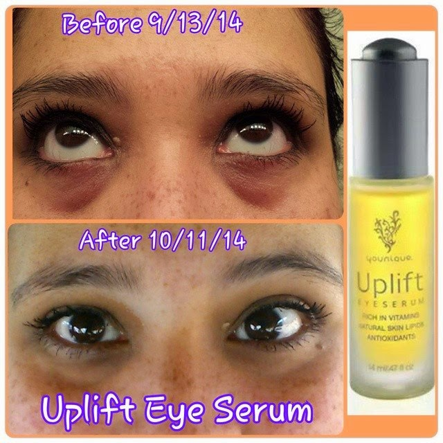 Uplifteyeserum Before Amp Afterpic Younique Makeup Skincare