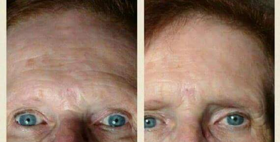 Younique Instant Lift Serum Results 2 Hours Younique